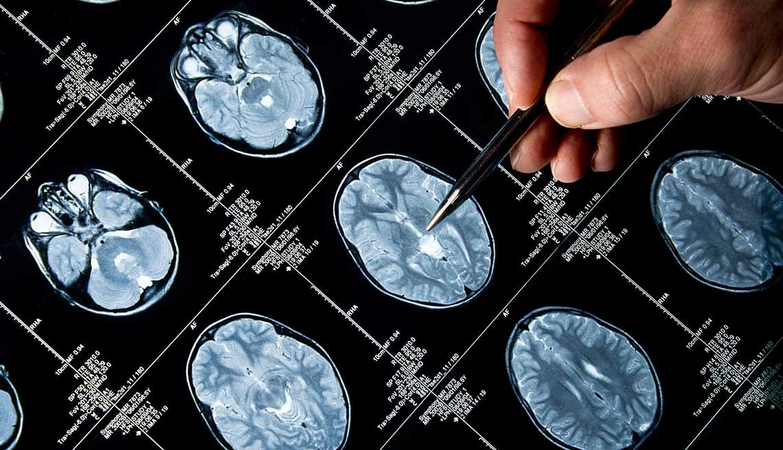 SD-RUSH-Mixed Results 'More Disappointing Than Not' for Alzheimer's Drug