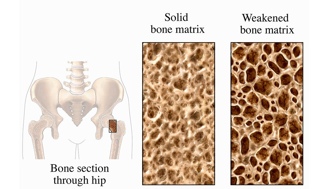 Osteoporosis Bone and Healthy Bone