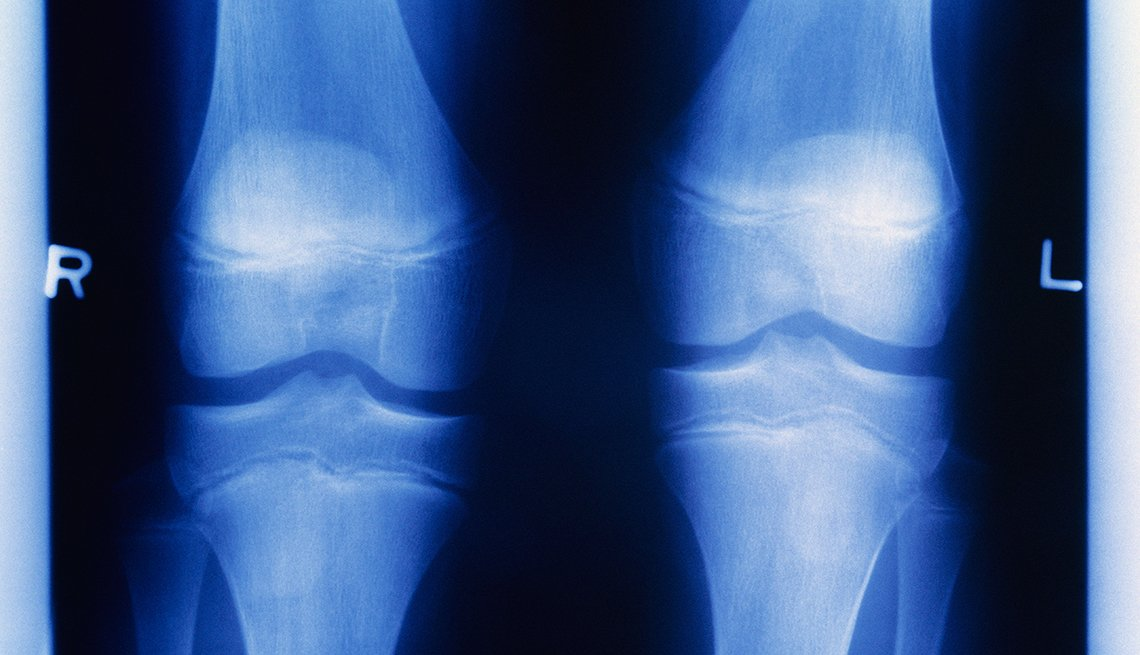 For Knee Pain, Experts Say Don't Think About Scoping It