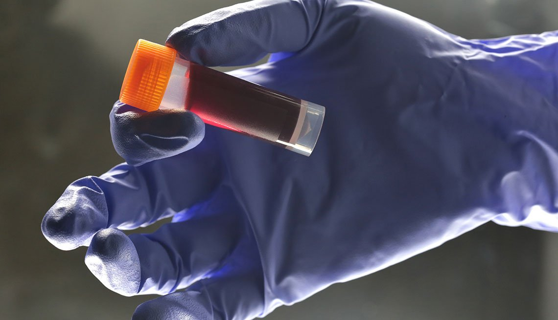 Medical Lab technician hold sample blood for testing