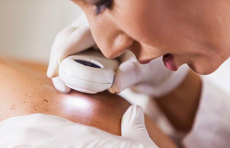 Dermatóloga viendo la piel de un paciente y los cuidados para mejorar la apariencia del rostro