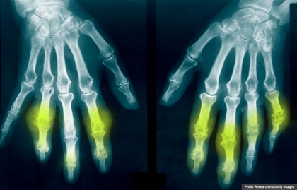 Hands with gout x-ray x ray