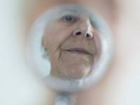 Los pacientes de Alzheimer muestran mejoría de la función cognitiva después de la cirugía de cataratas para mejorar la visión