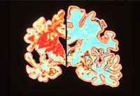 Brain on left with Alzheimer's Disease - new research on causes of Alzheimer's disease