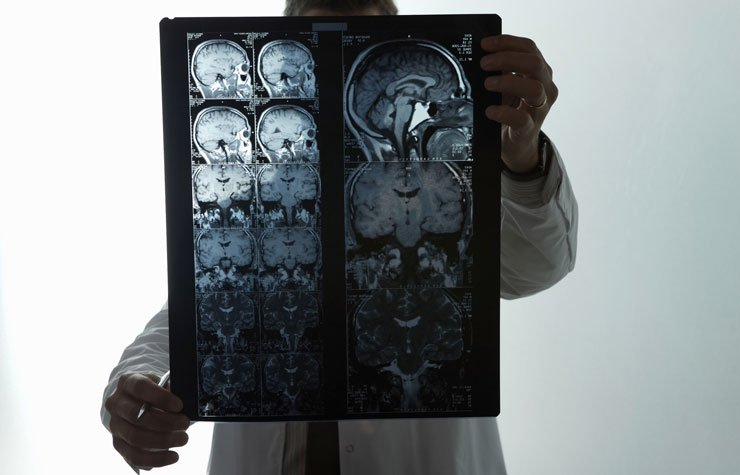 Normal Pressure hydrocephalus often misdiagnosed