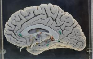 Un cerebro - Examen para detectar el Alzheimer causa controversia ética