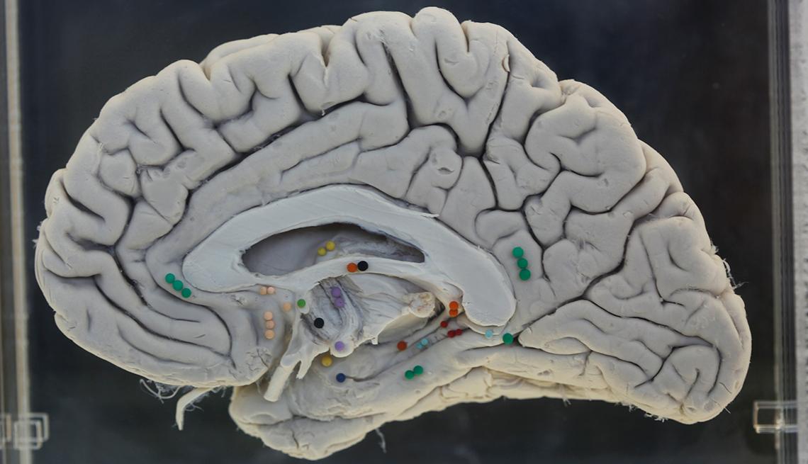 Disección de un cerebro humano