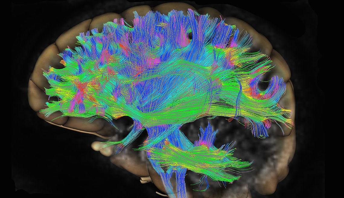 Scan of neurons in brain