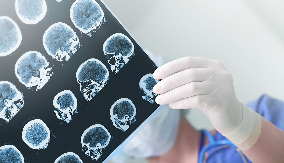 doctor holding a brain scan