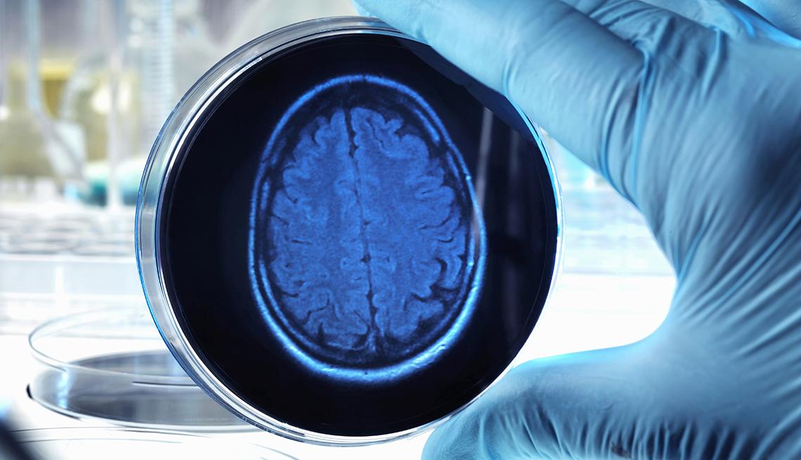 Científico con una placa de petri con la imagen de un cerebro