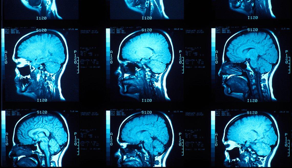 MRI de un cerebro