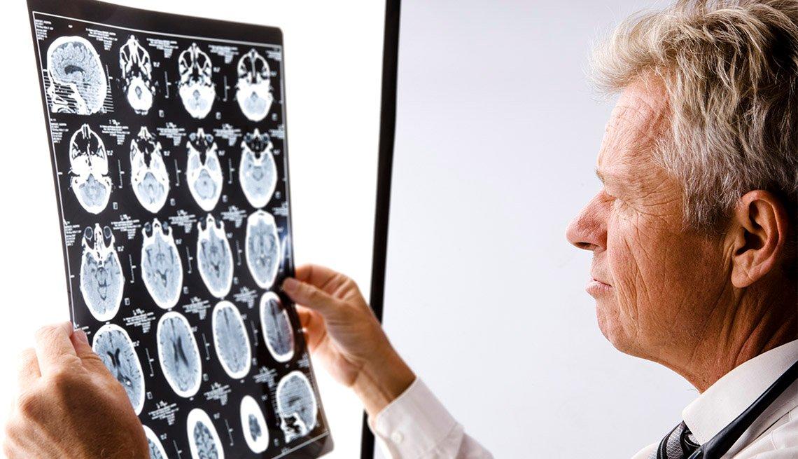 Médico observa una radiografía del cerebro