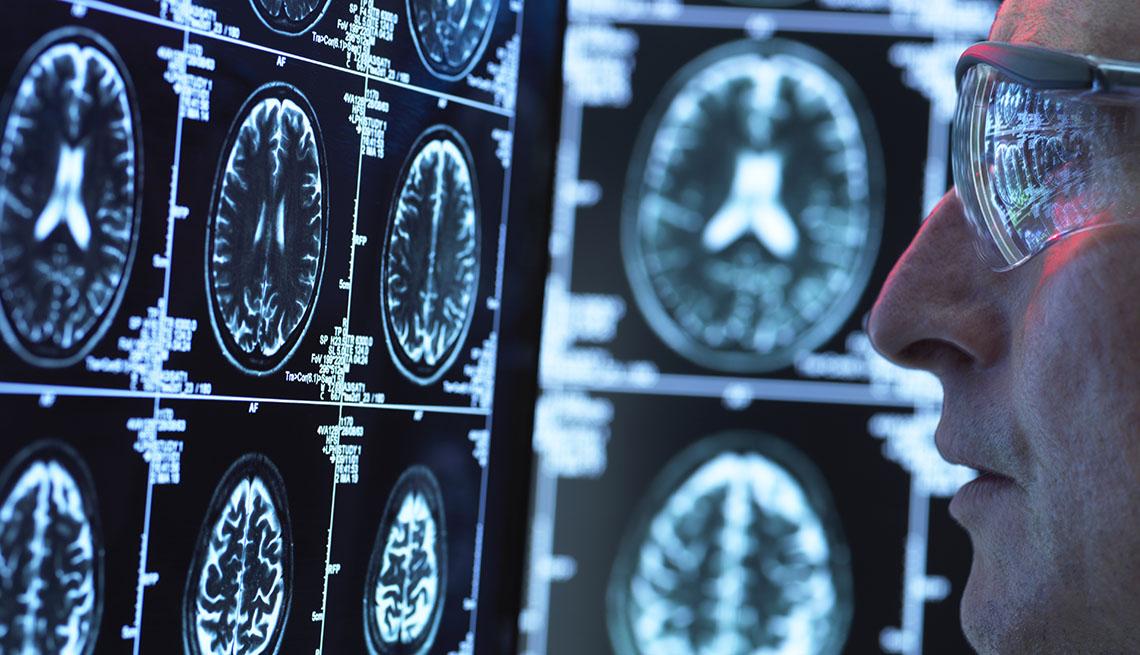 Un investigador científico mira unas radiografías cerebrales