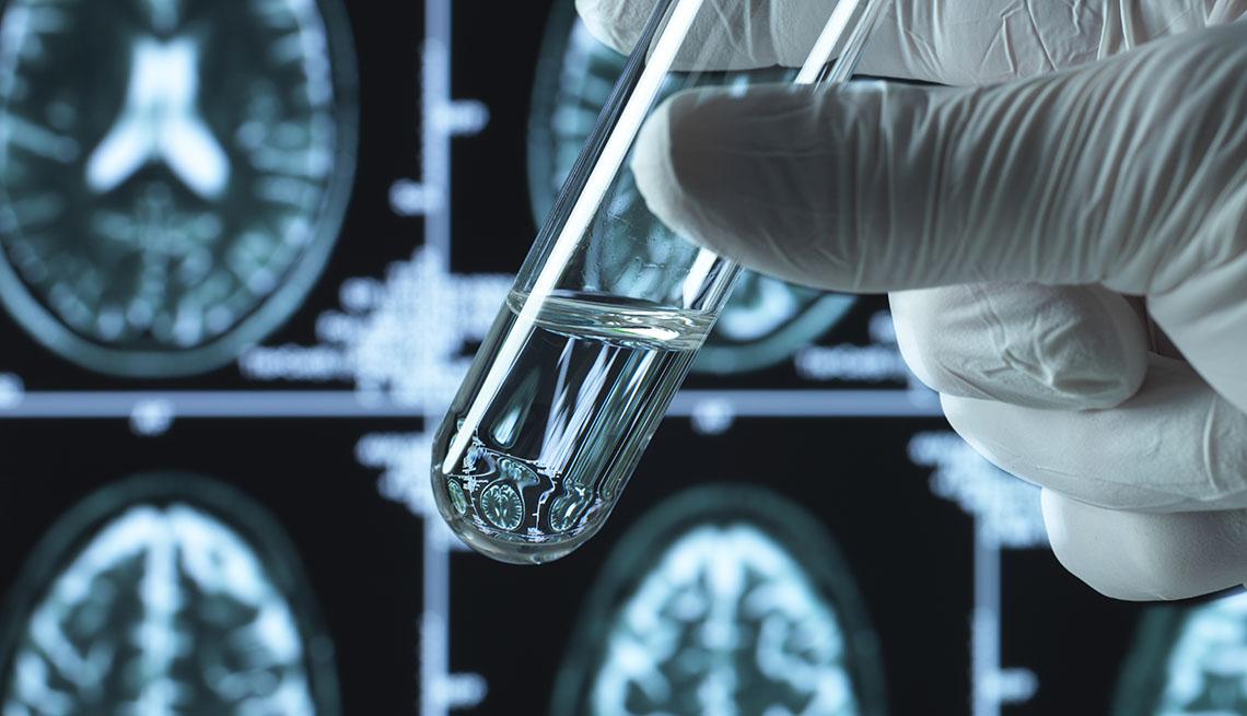 Una mano con guante sostiene un tubo de ensayo, al fondo se ven radiografías cerebrales