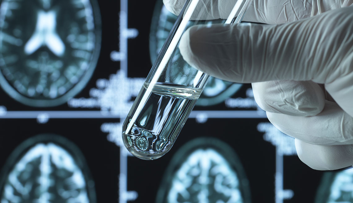 hand holding test tube in front of brain scans