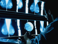 mammogram xrays