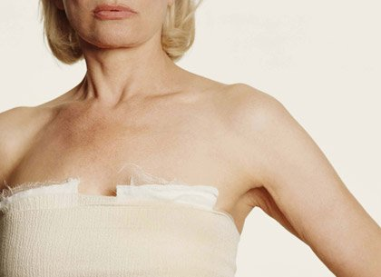 woman with breasts bandaged