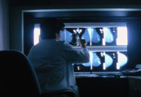 physician examining mammogram results