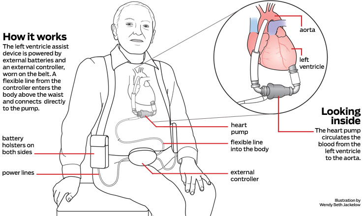 Diagram. How a left ventricle assist device works.