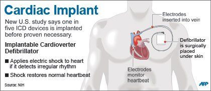 Cardiac Implant graphic