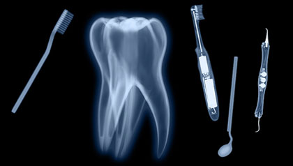 x-ray of tooth and dental items