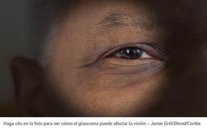 Abnormal Vision