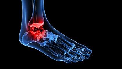 Un nuevo estudio de los CDC encontró diferencias sorprendentes entre los subgrupos de hispanos respecto a la artritis.