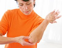 woman with elbow pain from lupus Commonly Misdiagnosed Illnesses