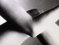 El dolor y la hinchazón en las articulaciones pudieran ser síntomas de lupus.