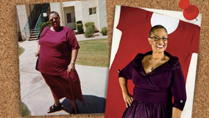 Bariatric surgery to lose weight. Before and after pictures of Joyce Lewis.