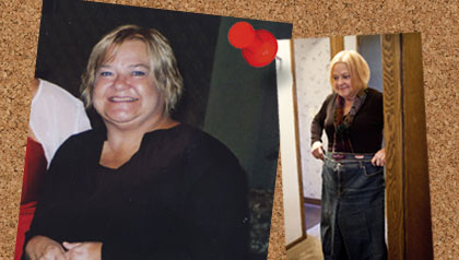 Bariatric surgery to lose weight. Before and after pictures of Julie Hartje.