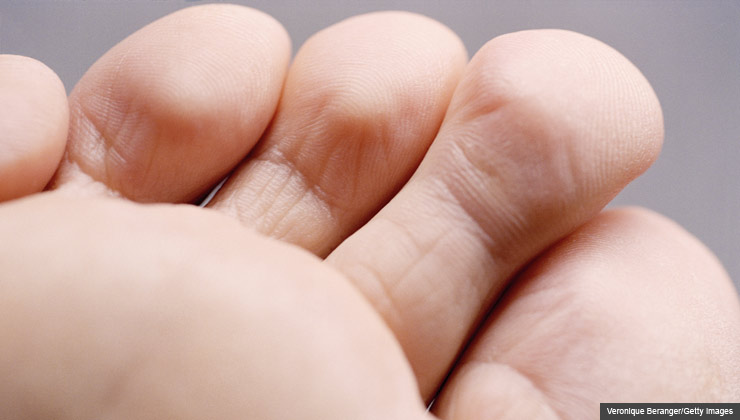 3. Myth: Gout pain always starts in the big toe Truth: It's true that gout often first attacks the joints of the big toe, but that's not always the case. In women with osteoarthritis, for example, gout pain commonly starts in the small joints of the hands. Although the first attacks often involves only one or two joints, over time multiple joints become affected. If the disease isn't treated, it can cause permanent damage. For 8 Myths About Gout slideshow.