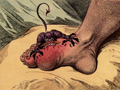The Gout by James Gillray