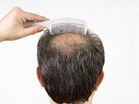 Hombre con su cabeza calva - el cuestionario sobre la salud acerca de la pérdida de cabello