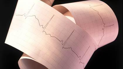 Electrocardiograma - Como tener un corazon sano - Factores de riesgo para el corazon