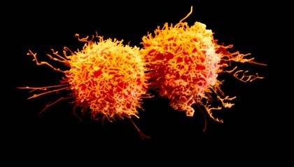 Células cancerosas - Cómo se diagnostica el cáncer
