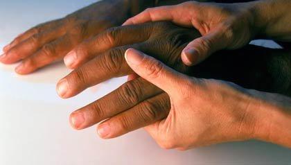 Manos masajeando otras manos - Osteoartritis, cosas que debe saber - Aliviar el dolor