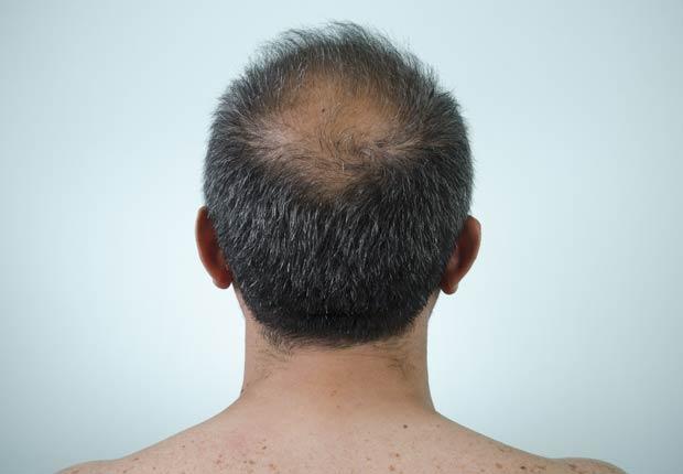 Hombre calvo, 10 Razones por las cuales usted puede estar perdiendo cabello