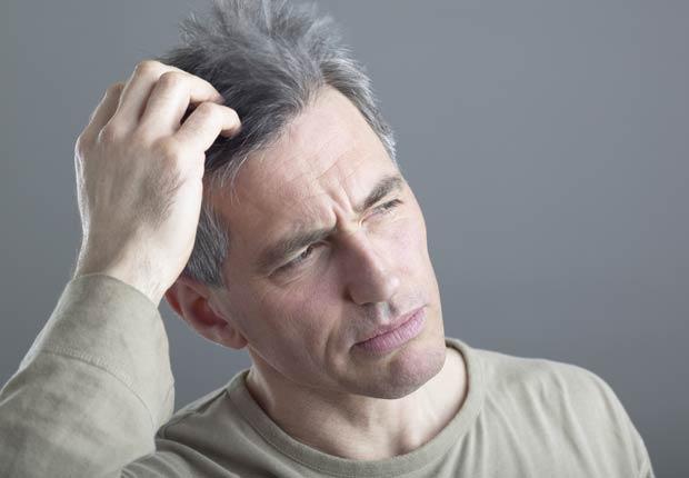 Hombre tocándose el cabello, 10 Razones por las cuales usted puede estar perdiendo cabello