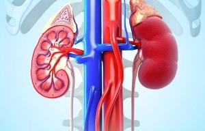 Piedras en el riñón (cálculos renales)