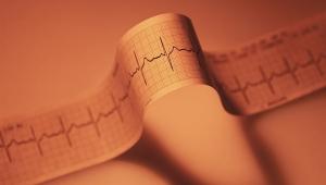 Fibrilación auricular - Enfermedad cardíaca que afecta a hombres de mediana edad