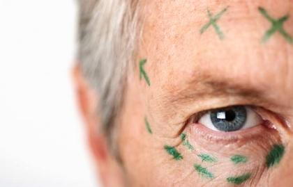 Hombre con marcas previo a una cirugía plástica - Tratamientos cosméticos para prevenir arrugas