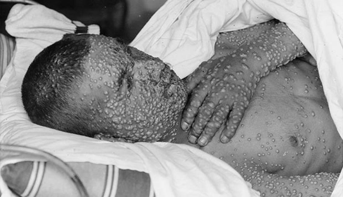 Smallpox victim, Plagues and Epidemics Through the Ages,