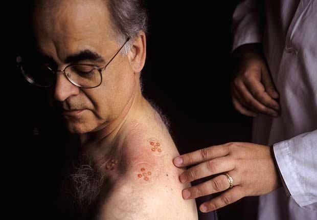 Epidemics 21 Century Lyme Disease Man Back Test ESP
