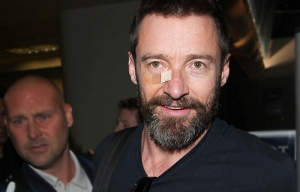Hugh Jackman wears a bandage on his nose due to his skin cancer, 8 Things You Don't Know About Skin Cancer