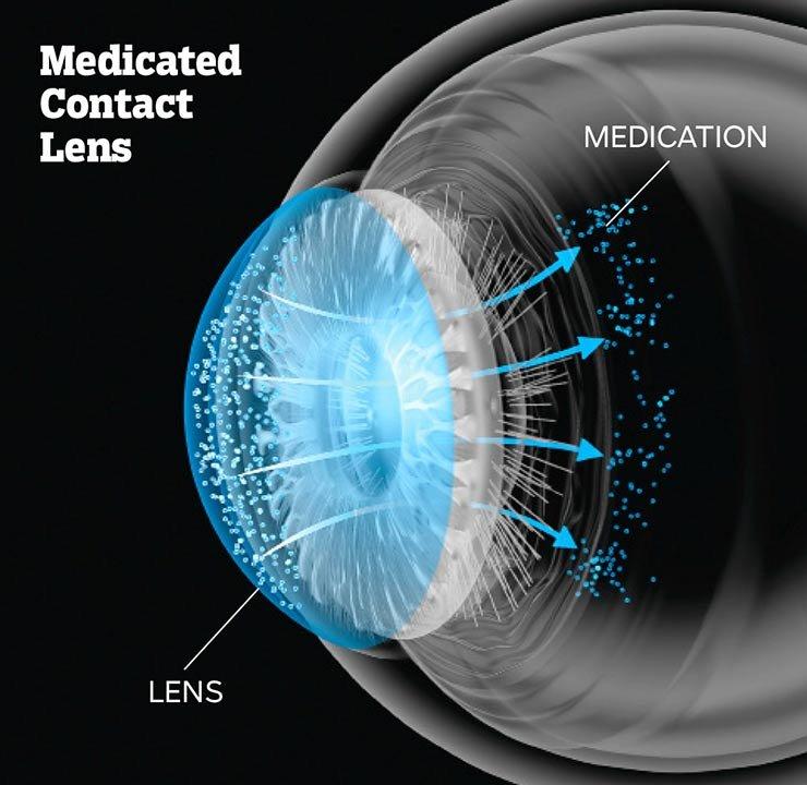 Lente de contacto en un ojo - Fin a la pérdida de visión en el futuro