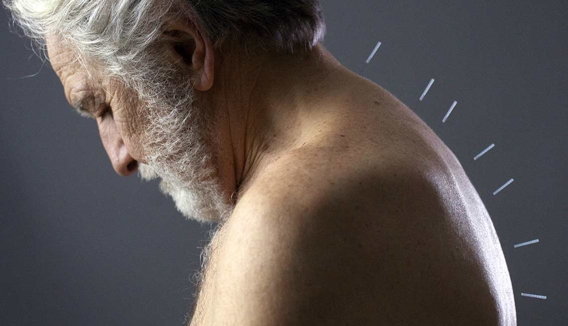 Ways To Ease Shingles Pain Acupuncture