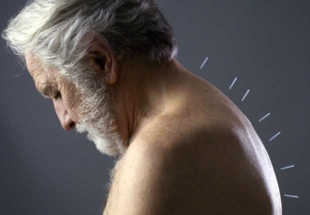 Hombre con agujas de acupuntura
