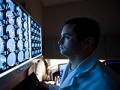 Doctor mirando unas radiografías