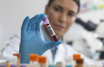 Enfermera sosteniendo un tubo de sangre